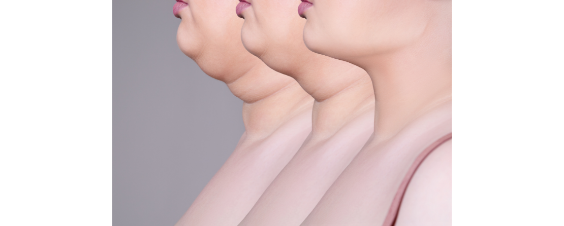 7 Exercises to get rid of double chin