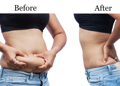 How to reduce my tummy quickly with exercise and diet